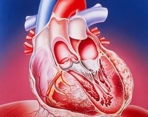 Приступ кардиофобии.