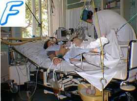 Первичная фибрилляция желудочков.